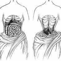 victorian-corset-2